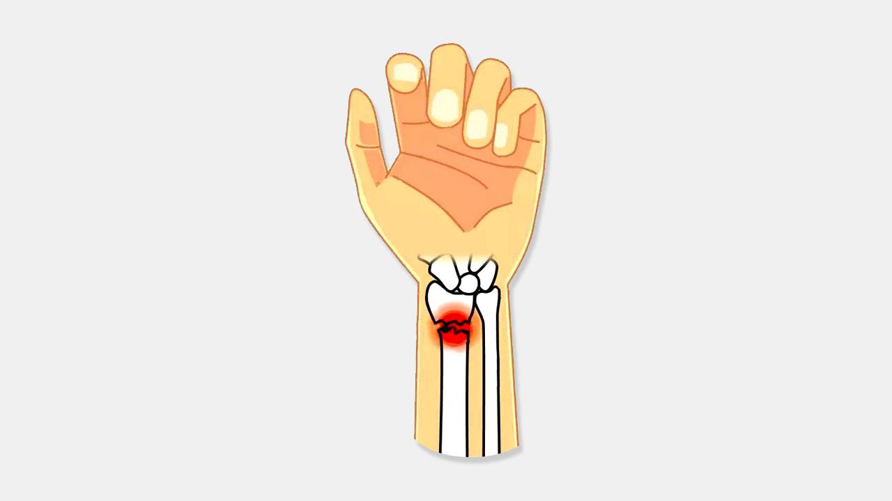 Лучевая кость руки анатомия лечение трещин и переломов восстановительный период