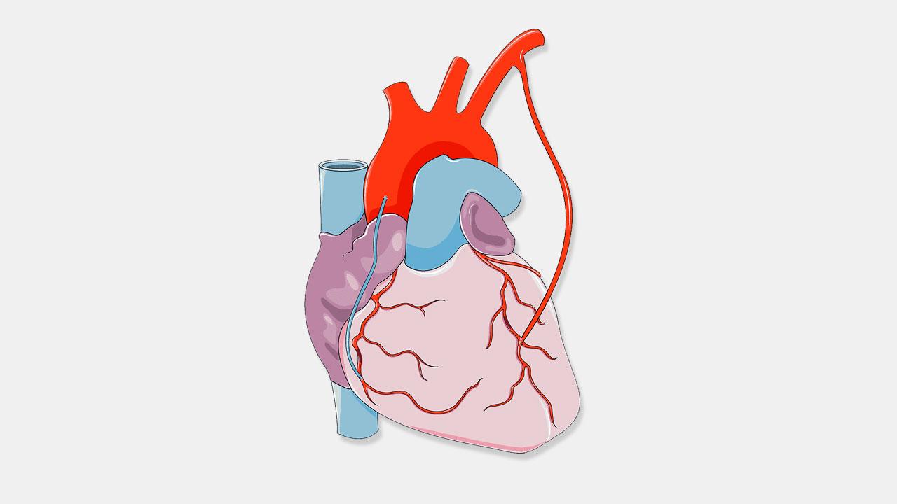 Восстановление после шунтирования сосудов сердца — Сердце